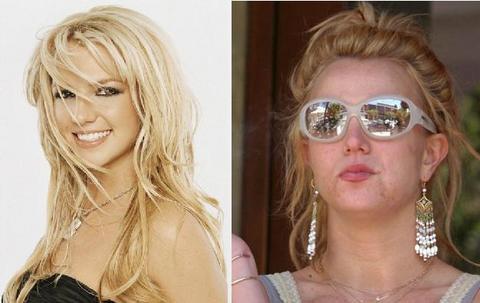 Antes y Después de Britney Spears