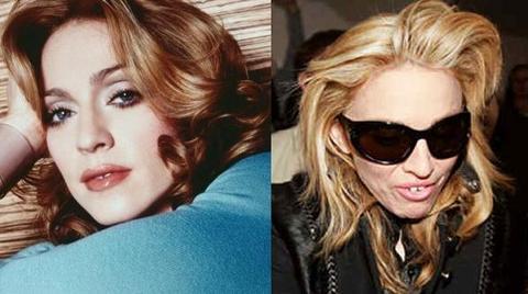 Antes y Después de Madonna