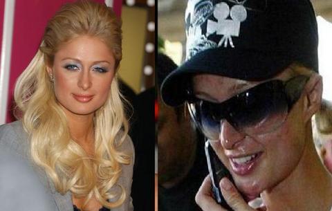 Antes y Después de Paris Hilton